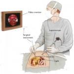 laparoscopy_surgeon